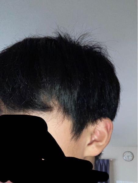 至急です。浅くツーブロックにしようと思っています。 この髪の長さじゃまだ早いですよね?もっと伸ばした方がいいのでしょうか。 あと髪質悪くてもじゃもじゃしてて不快になった方す みません。