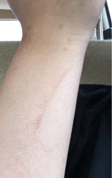 この傷跡ってレーザーとかで薄くする事出来ますでしょうか?また行くとしたら美容皮膚科さんとかですかね?
