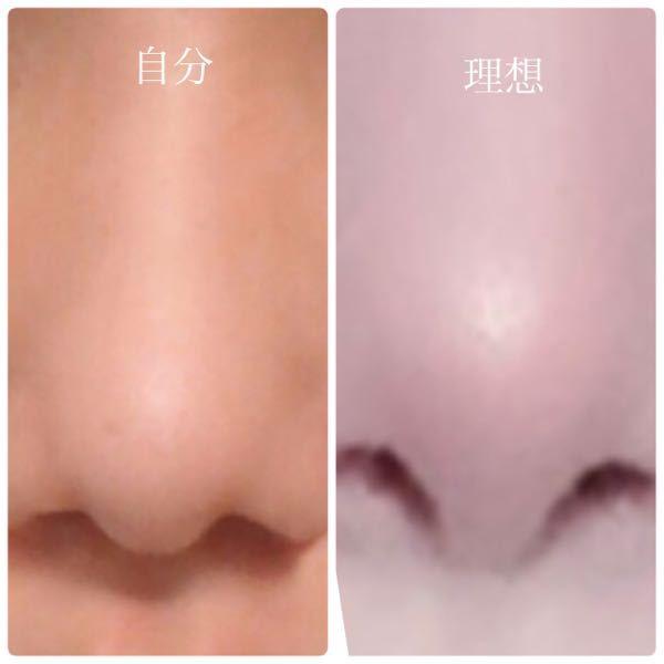 鼻整形ついてです。写真あります。 私は団子鼻+鼻筋皆無です。 鼻翼が鼻尖より長く、鼻の穴が斜め下向きです。 理想は広瀬すずさんのような鼻の穴が斜め上向きになるものです。鼻翼が長いと小鼻が目立ちます。 この場合はどこを直せば写真の右のような 鼻になりますか?