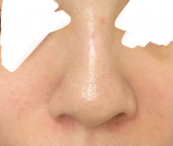 この鼻は団子鼻ですか?豚鼻ですか?