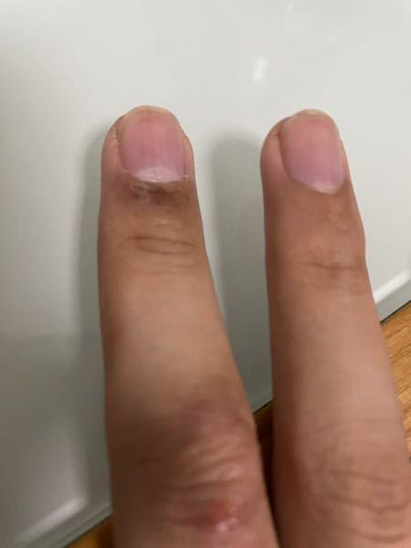 この中指の爪のとこみたいに茶色くなってかゆいんですけど、どうしてですか??