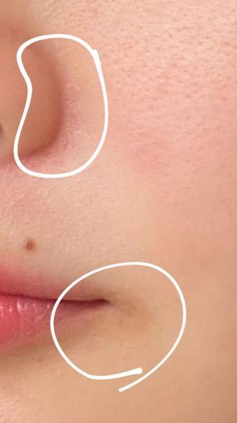 鼻の赤み(?)や口角の黒ずみ(くすみ)をなくすにはどうしたらいいでしょうか? 今やっていることは、洗顔はこすらないようにすることや、ビタミンCを取ることなどです(・・;) 他にもやった方がいいこ...