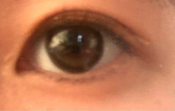 すみませんアイプチしている目なんですが、この目って蒙古襞ありますか?