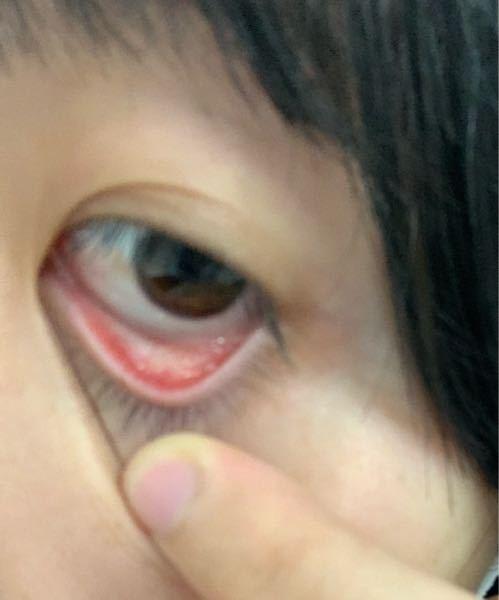 目の中が白くなっています 少し痒いのですがこれはなにかの病気ですか?