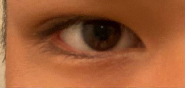 最近画像のように瞼が浮腫み、元々あった二重が段々と狭くなってきているのですが、どうしたら良いでしょうか。