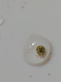 メダカの水槽に卵みたいな微生物みたいのがいたのですが、何か分かりますか?