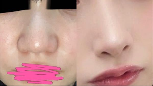 左から右の鼻になるにはどんな施術が必要ですか? また、大体いくらくらいかかりますか?