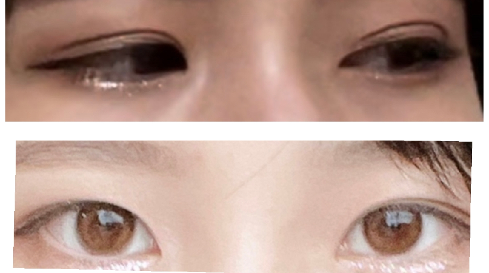 この目は平行二重ですか?それとも末広二重ですか? 写真のように伏せた目にすると、二重とわかるのですがぱっちり目を開くとあまり二重にみえずメイクのいい方法がわかりません。 平行二重か末広二重または一重、、どのメイク方法を参照すべきでしょうか?