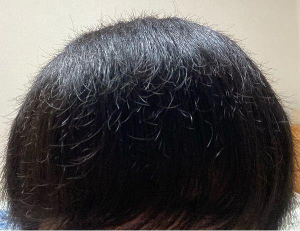 髪の毛がこんな感じでパヤパヤ?浮き毛?がめっちゃあります。シャンプーもコンディショナーも毎日してます。 これを撮った時は風呂上がりだけど翌日の朝とかには多少マシになってますが普通に近くで見たら結構わかります。あと、光が反射したら若干茶髪に見えます。中学の頃から結構言われてました。 シャンプーで根元まで指の腹で洗って(そんなに強くは擦ってません。)ちゃんと流してからコンディショナーを毛先だけ(なるべく頭皮につかないようにして)やって、なるべく長めに流してますがこんな感じになります。 シャンプーとコンディショナーは母が使ってた、HIMAWALIってのを使ってます。 量は容器に「適量を取って...」ってかいてるけどよくわかんないんでワンプッシュ+ワンプッシュの半分です。 この髪結構傷んでますよね? 改善方法とかないんですか?