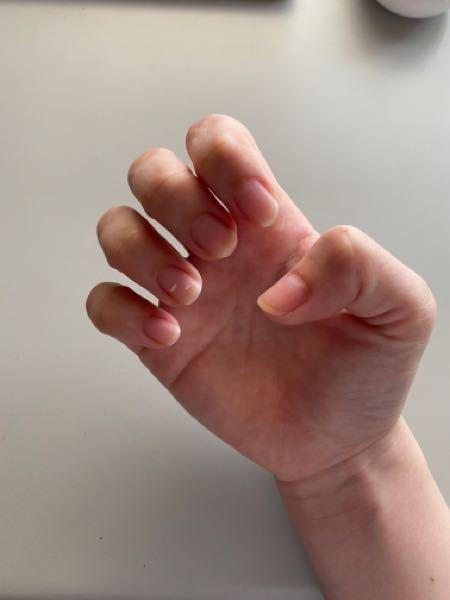 爪の長さについて ネイルサロンでジェルネイルをしてみたいと思っているのですが、この長さでも施術は受けられますか? またこの長さだとショートネイルになりますよね?