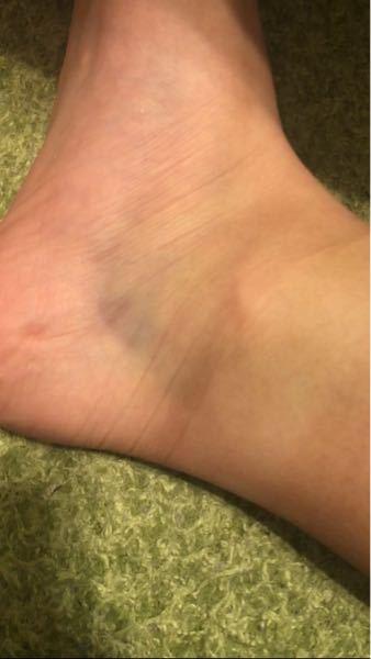ソフトボール部のマネージャーをしています。 一週間前くらいに、ピッチング練習でバッターとしてバッターボックスに立っていました。 そしたらピッチャーのボールが足に当たって今も痛みが続いています。 体育でのランニングや階段の下りがしんどいです。 病院に行った方がいいですか?