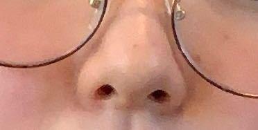 お見苦しいですが、わたしの鼻は団子鼻ですか?上向き鼻ですか?