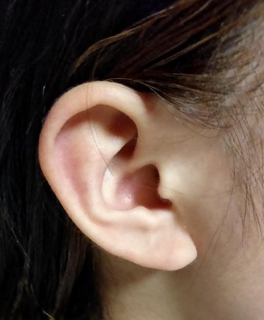 インダストリアルをあけたいのですが、私の耳は向いてる耳でしょうか?不向きな耳でしょうか? この方( https://www.instagram.com/p/B6kxY6jnuY7/ ) のような位置に開けたいのですが、下側の方の穴の位置が、家族の耳と比べ私のは薄くて柔らかいです。なのでちぎれないか心配です。 (もし空けれそうな場合、インダストリアルだけを開け耳たぶは穴を開けずイヤリングを付けようと思っているのですが変でしょうか? 私の考え方なのですが、他の部分はイヤリングでも遠目ではピアスの用に見えるデザインが増えてきた為、開ける気ないです。 また、インダストリアルは痛みも安定もケアもピアス上級者向けと書いてある記事を読み、初ピアスにインダストリアルを開けていいのか不安です。)