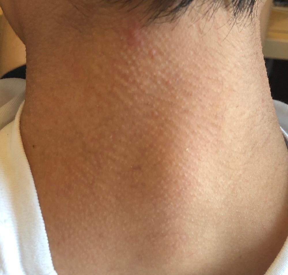 首がザラザラ、ブツブツしていてとても気ななっているのですが対処法やおすすめの化粧品など知っている方がいましたら教えて頂きたいです。 昔からアトピーで肌は敏感な方でした。 写真を追加しておきました。 宜