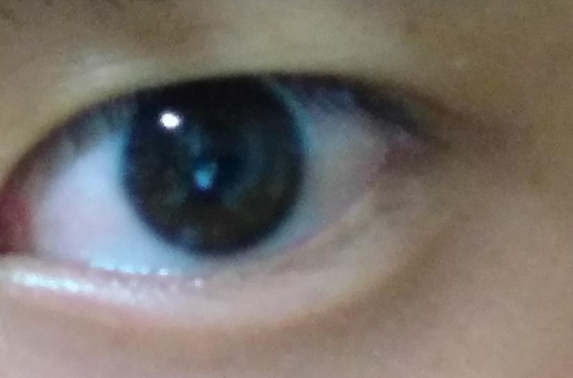 この瞼は伸びてしまっていますよね、? 整形以外じゃやっぱり直せないですよね(--;)