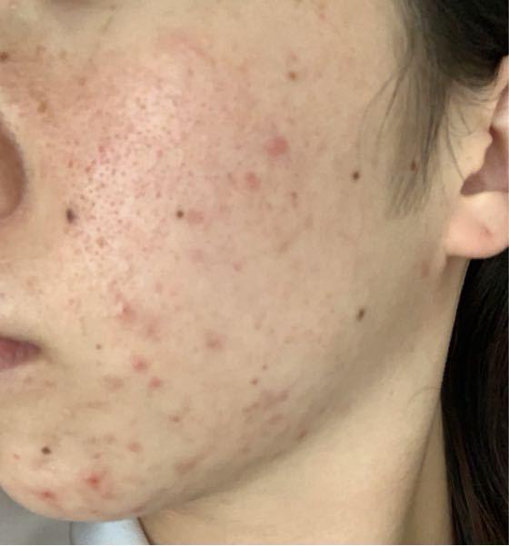 21歳女です 単刀直入に、どうしたらこの汚い肌が綺麗になると思いますか?? スキンケア、おすすめの商品等教えて欲しいです。