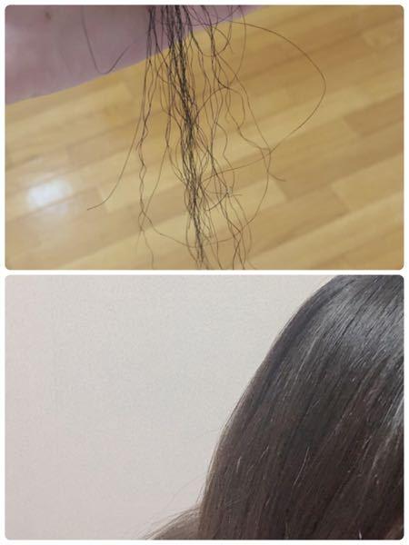 全体で見たら普通の髪なのに結構な量陰毛みたいなのあります。なんでですか? 気になって抜いてしまいます