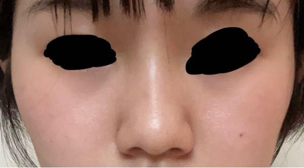 鼻が横に大きく、先が丸く、低いのが凄くコンプレックスです。こんな感じです。 正直鼻ブスだと思いますか? また、整形するならどこをやった方がいいでしょうか?