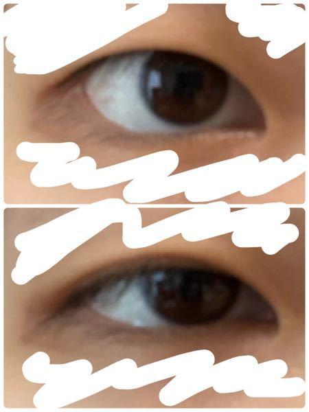 真正面を見てると(上側)どう見ても一重なんですが、下を向いたり目を細めると(下側、細めてます)二重ぽく?見えます これって奥二重なんでしょうか?また、この幅を広げたりはできるんでしょうか?人工的ではなくマッサージなどで自然に……