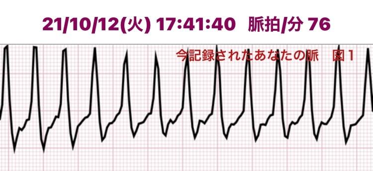 最近特に動悸息切れ息苦しさを感じます。安静時、就寝時は感じません。 下記は私のアプリ心電図結果ですが、病院に行った方がいいでしょうか。専門知識のおありの方、ご教授お願い致します。