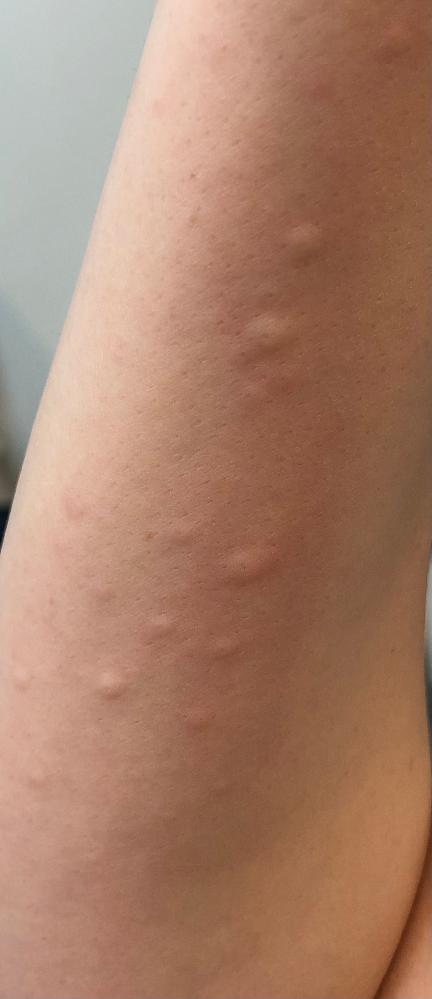 蕁麻疹について。 詳しい方教えてください。 先日、食後に突然蕁麻疹が出ました。 アレルギーかと思い食べたものを思い出していたところ、次の日の朝にまた出ました。 それからは何も口にしていなくてもた...