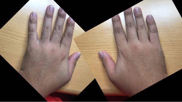 左の手と右の手どちらが見た目良いですか? 左は何もしてない、右は指毛だけ剃りました。