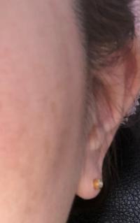 ピアスの位置について。 今日、皮膚科でピアスをあけてファーストピアスをつけました。 あけた位置は耳たぶの真ん中なのですが、福耳のせいなのか、ファーストピアスが分厚いからなのか、正面から見た時にピアスの側面が正面になってしまいます。  耳たぶの輪郭に乗っかっていてイボみたいです。  もう少し内側に内向きに空け直したら、ピアスが正面に向きでしょうか?  それとも仕方ないので、諦める...