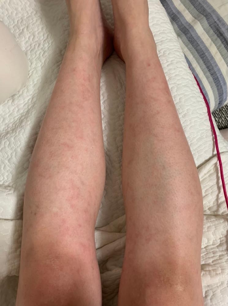 長時間立っていると足に発疹のようなものができ、赤くなります。 少し痛い感じや重い感じもあります。 次の日にはこの赤みが引くのですが、連日だとひどくなるばかりです。 何かわかりますか?