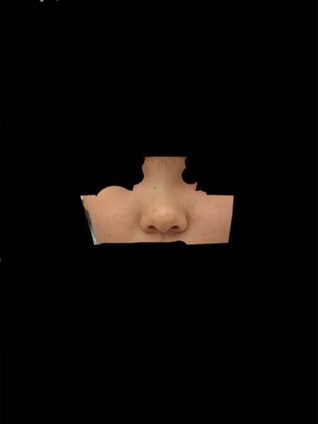 辛辣で構わないので私の鼻の悪い所を教えてください。 また、どういう整形をしたらいいかも教えて下さると嬉しいです。 客観的な意見が欲しいです。よろしくお願いします。
