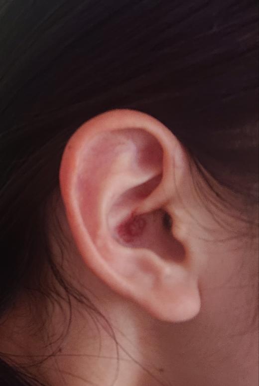 (写真あり)耳にできた傷について 10日ほど前から耳の中に少しぽこっとしたものができており、痒かったので虫に刺されたかなと思っていました。 7日ほど前にそれが赤くなって、かさぶたのようになって...