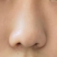 私の鼻は小鼻がないくらい低くて丸いのですが、マッサージとか鼻クリップで少しでも高くなりますか? 写真では鼻が歪んで見えるのですが、実際では歪んでないはずです!