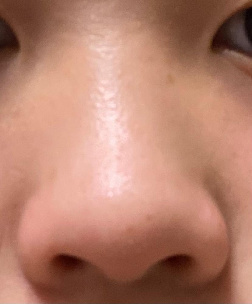 自分の鼻がコンプレックスです。 将来整形も考えているのですが、それまでにマッサージなどで改善出来るとこはやっておきたいです。 これ以上団子鼻を解消することは無理でしょうか??、、 どなたかアドバ...