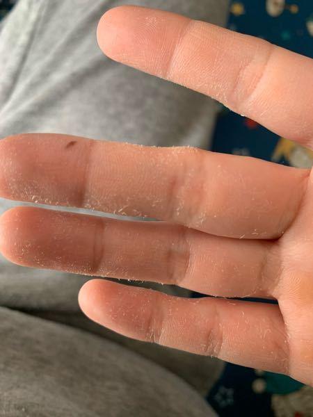 昔から食器用洗剤や日焼け止めなどを触ると指の薄皮が剥けます。 これはどうしてなのでしょうか?