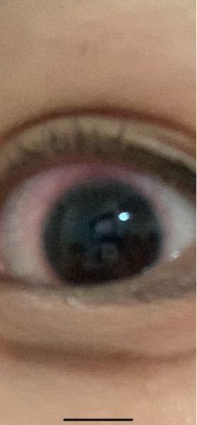見えにくくてすみません。 カラコンを付けて、取り外す際にこのように赤く充血しています。 最近毎日です。 カラコンを変えても染みたり赤く充血します。 眼科に行った方がいいですかね