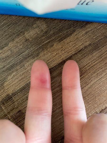 ((至急)) 転んで小指がとても痛いです。 腫れていてパンパンになってます。 これは病院いったほうがいいですか? 行ったところでなにかしてくれますか? 写真わかりずらくてすみません汗