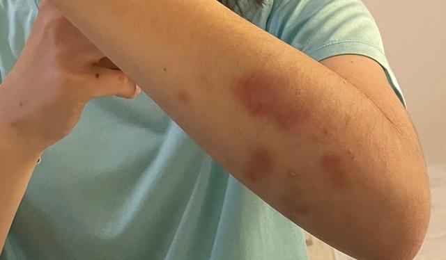 私は剣道をしている高校1年生です、 いつも稽古をした後や錬成会後にあざができます。仕方がないのですが、予防する方法はありませんか?
