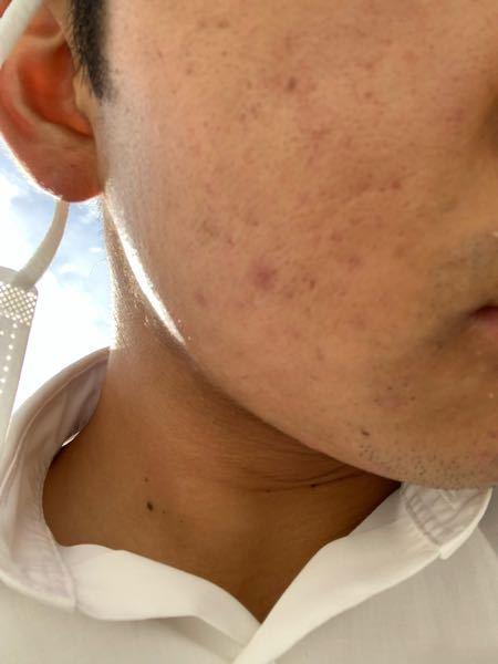 【閲覧注意】 高校2年生です このような肌ですごく悩んでいます。 人間の第1印象は清潔さで決まるというので まずは肌をキレイにしたいです 詳しい人よろしくお願いします。