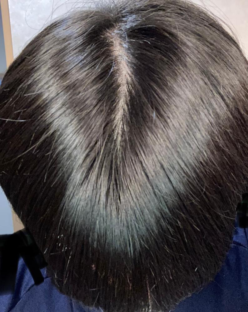 高校1年です、毛が薄くてこれはハゲですよね?