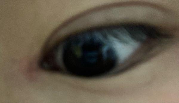 目の鼻側のほうが腫れ?? どういう症状ですか?
