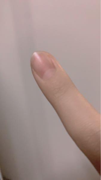 爪の付け根の白いところが異常に多いんですけど病気ですかね!?友達の見てみたらない人もいたし、みんな小さかったです!全部の指白いところが多いです!