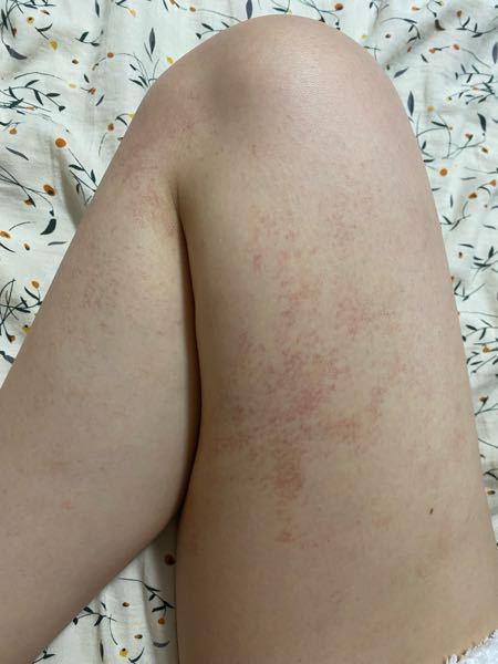 寒くなってから急に足に赤い斑点か出来たのですがこれは何かのアレルギーでしょうか? またどうすれば治りますか??