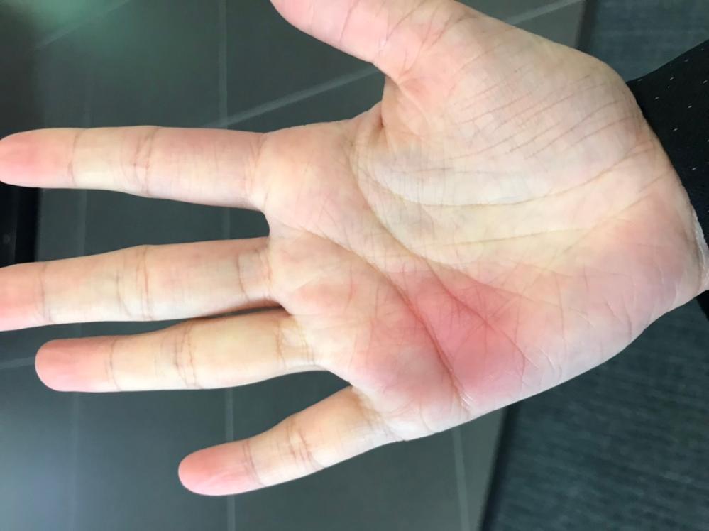 ここ数日、頭痛と口唇ヘルペスが再発してます。(たまにストレスや疲れ等で再発) そして何故か手のひらの一部が赤く、かゆみが伴っています。 これは関連があるのでしょうか。 何か病気の可能性があると...