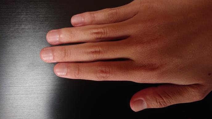 深爪 爪の白い部分が見えるのが嫌で、いつも深爪と言われるような状態にしています。深爪はあまりよくないのでしょうか? また、深爪矯正というのをすれば、ピンクの領域は増えるのでしょうか? マイクロメートル レベルなら問題はないのですが、1~2mm伸びると切ってしまいます。