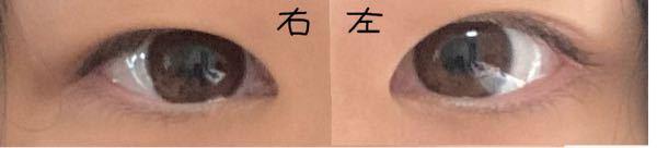 この目は目頭切開無しでも何かしらの二重術をすれば幅広平行二重になりますか...? 回答よろしくお願いします ♀️