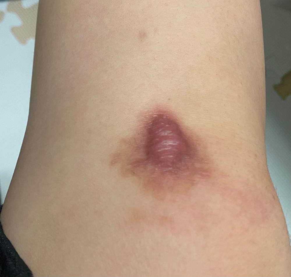 見苦しい画像で申し訳ないです。 特に医療関係者の方に回答していただきたいです。 8月上旬、自転車で走行中に転倒し、膝を思いっきり負傷しこのような傷ができてしまいました。 (ちなみに転んでからこ...