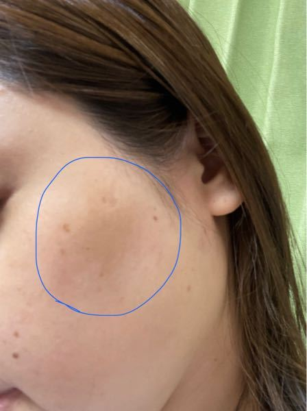 汚肌ですので、お気をつけ下さい。 頬骨の下(こめかみ寄り頬)に薄茶色の大きなシミが出来ました。 濃さは違いますが、左右同じ場所にモヤっとあります。ちょうどマスクで隠れない場所です。 年齢は34です。 これはシミですか? 肝斑ですか? よろしくお願いしますm(_ _)m