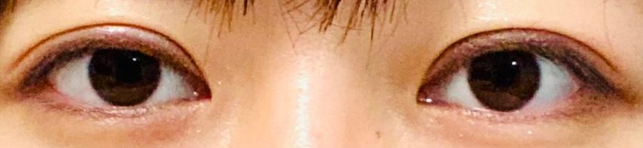 二重切開をして3週間程経ちますが、平行でお願いしたはずがどう見ても末広二重になっている気がします。 これはまだ3週間で出来上がっていないので、まだ様子を見た方が良いのでしょうか…? 平行希望だったので目頭切開も考えてしまいます… ちなみに写真の瞼が少し赤いのは化粧で、腫れによる赤みではありません。