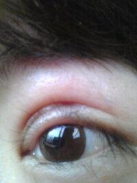 眼瞼下垂で切開しました。二重の中の線について教えてください。 ちょうど1ヶ月前に眼瞼下垂の手術をしました。 術後からですが切開線(二重のライン)とは別に睫毛との間(二重の幅の部分)に目頭から1/3ほど斜めに線が入っています。 へこんでいるような線です。 術後初期の頃よりはへこみ(くぼんだ感じ)が治まったのですが、やはり目を見開いたりした状態にするとまだ目立ちます。 まだ傷は目頭側が硬...
