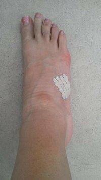 マラソン後甲の外側が痛いです。アドバイス下さい 中足骨 外側(小指側) 痛い。 フルマラソン後 1か月たつが痛み、腫れがひかない。原因わかりますか?   フルマラソン後、1日経過した時から足の甲外側が痛い...
