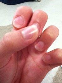 爪のピンクが全くないです。至急なので詳しく教えて頂きたいです。ネイルサロンは無理です。昔爪を噛んでいたので爪が弱く柔らかいです。丈夫じゃないです。